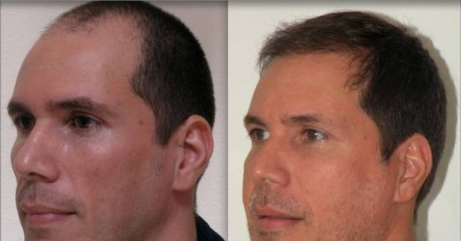 This photo shows a patient before and after undergoing the NeoGraft hair restoration procedure. (Submitted photo)